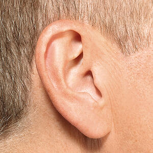 invisible-in-canal-hearing-aid-in-ear-iic